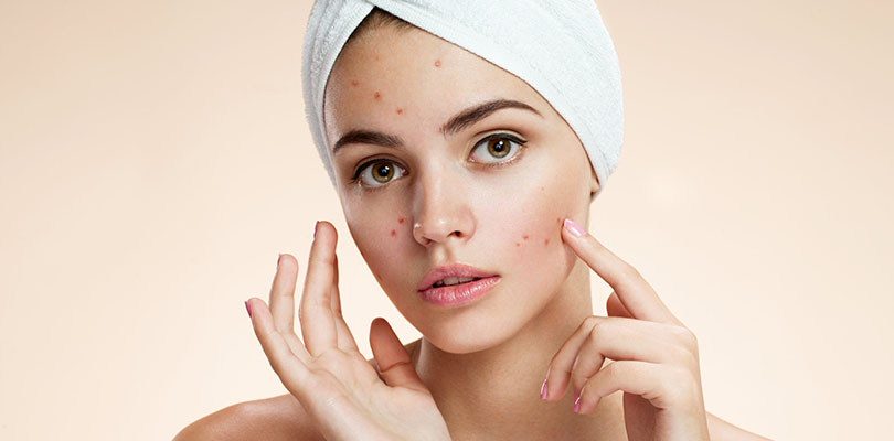 Tea Tree Oil For Acne What Are The Benefits Of Tea Tree Oil On Skin