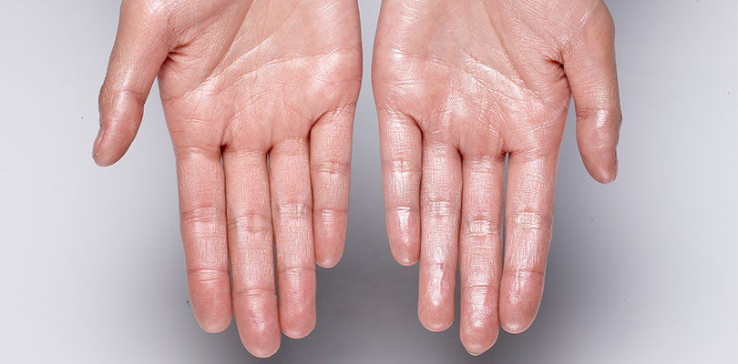Hyperhidrosis: Why Excessive Sweating Happens and How to